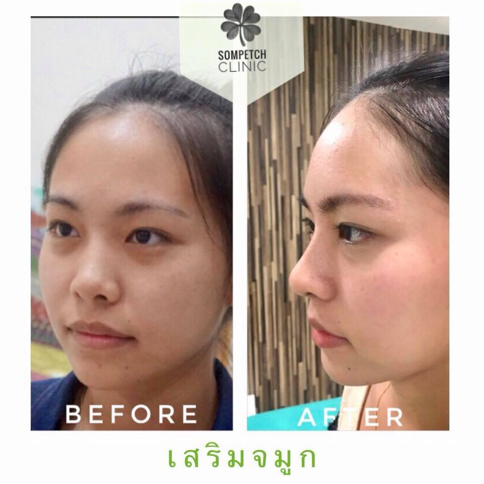 Plastic surgery clinic,botox,filler,eyelid surgery,nose